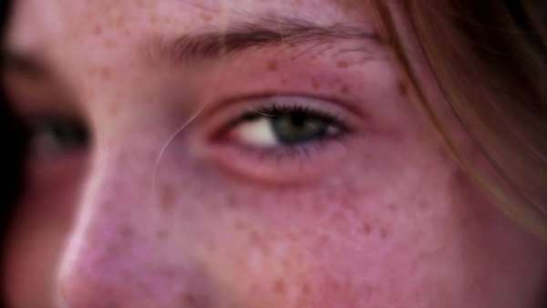 Close-up on young girls face with green eyes and braces Royalty-free stock video