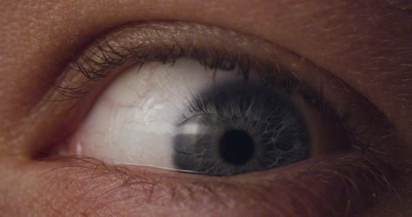 Hand-held shot of an eye Royalty-free stock video