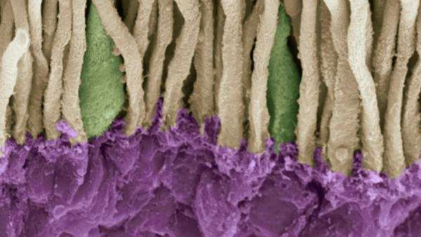 Retina. Coloured scanning electron micrograph (SEM) of rods (yellow) and cones (green) in the retina of the eye. The outer nuclear layer is purple. Royalty-free stock video