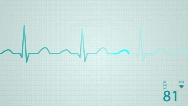 Animation of schematic intensive care unit monitor showing normal animation of schematic diagram of normal sinus rhythm for a human heart as seen on ecg ccuart Images