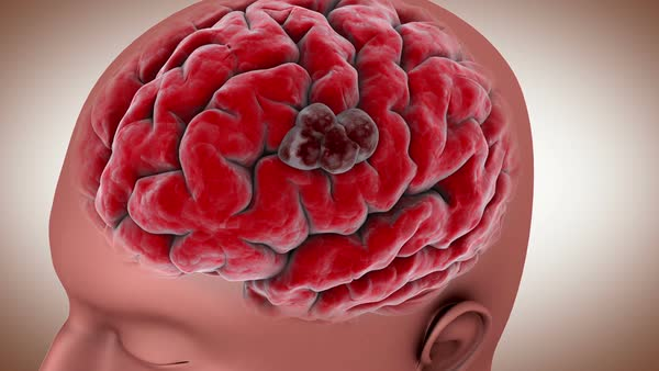 Image result for royalty free images of people with brain tumor