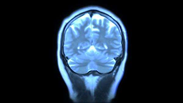 MRI brain scan Royalty-free stock video