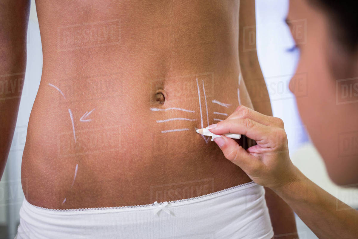 Close-up of surgeon drawing lines on womans abdomen for liposuction and  cellulite removal stock photo