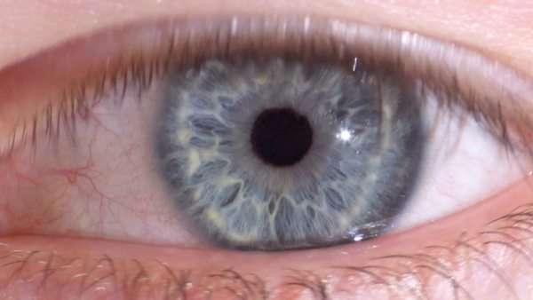 Contracting pupil. The iris (blue) is a ring of muscle that opens and closes to alter the amount of light entering the eye. Rights-managed stock video