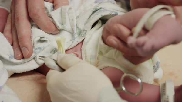 Close up high angle shot of father cutting umbilical cord of baby Rights-managed stock video