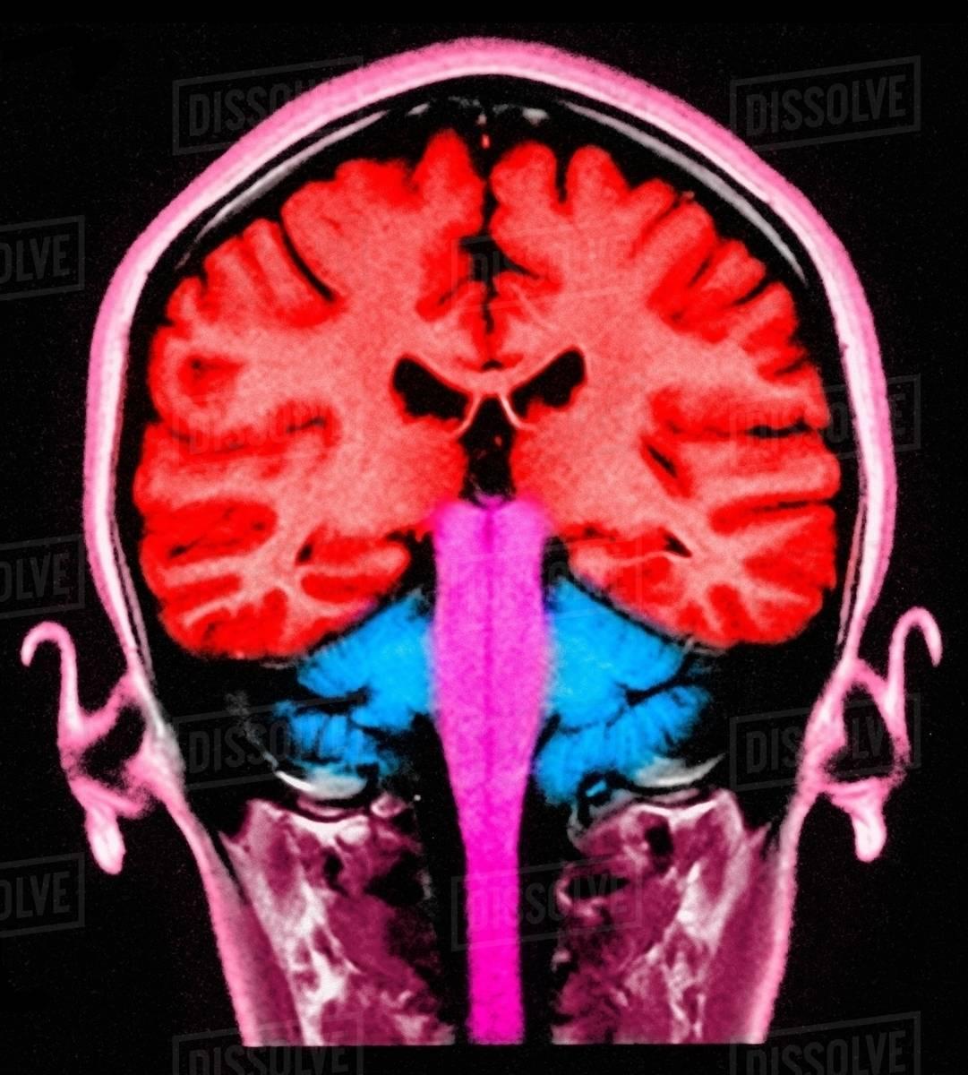 MRI brain scan, sagittal view, colorized - Stock Photo - Dissolve